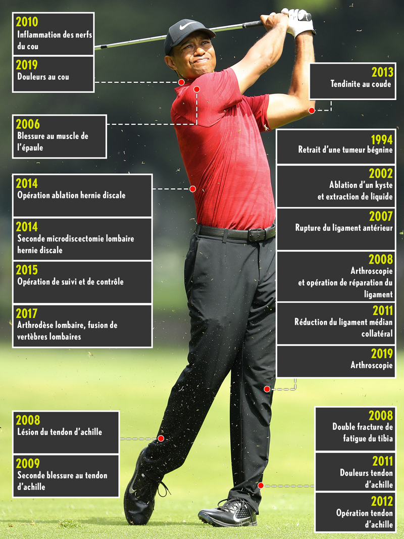 Tiger Woods operations surgery